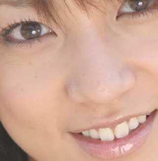 KONAN 前歯の写真
