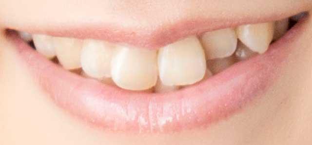 村川梨衣 前歯の写真