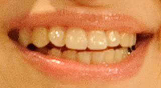 中島愛 歯の写真