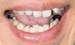 大泉洋 前歯