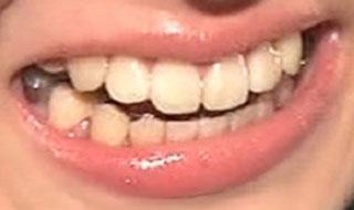 菅谷梨沙子 前歯と銀歯の写真