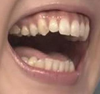 杉上佐智枝 前歯の写真