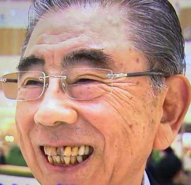 鈴木敏文 前歯の写真