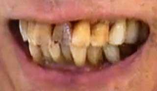 鈴木敏文 変色した前歯