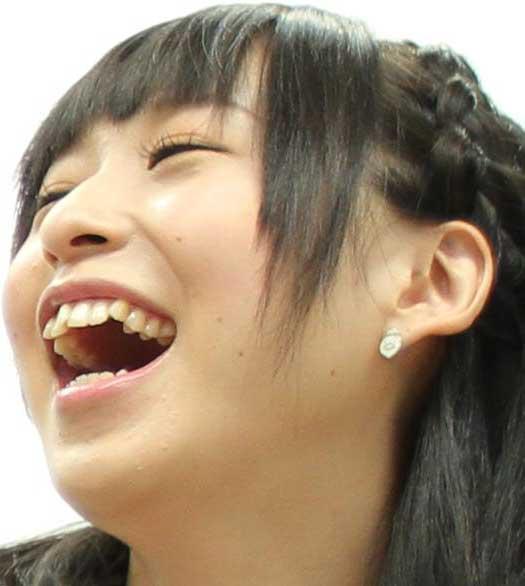徳井青空 歯