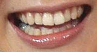 内田恭子 前歯の写真