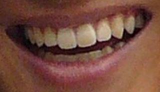 山本紘之 前歯