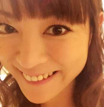 吉澤ひとみ 前歯の写真