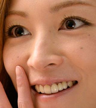 吉澤ひとみ 差し歯の写真
