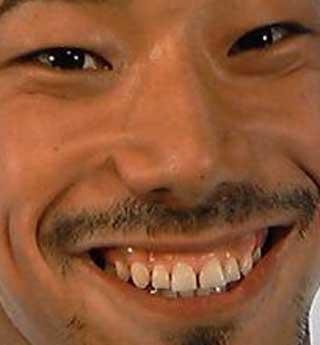 NAOKI 前歯の写真