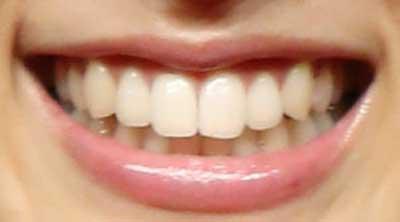 土屋太鳳 前歯の写真