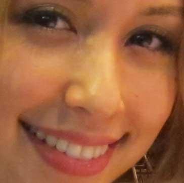 BENI 前歯の写真