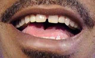 エディ・マーフィ すきっ歯