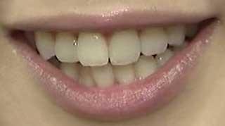 古谷有美 前歯の写真