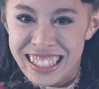 松田悠良 前歯の写真