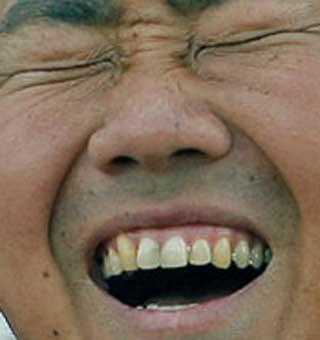 松坂大輔 前歯の写真