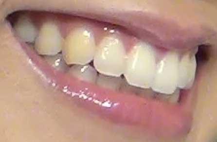 三森すずこ 前歯の写真