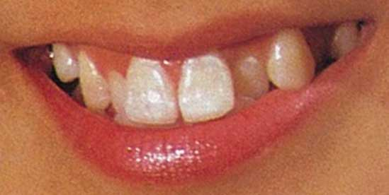 森尾由美 前歯の写真