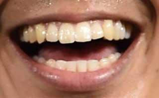 武藤嘉紀 前歯の写真