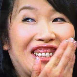 内藤みか 前歯と歯茎