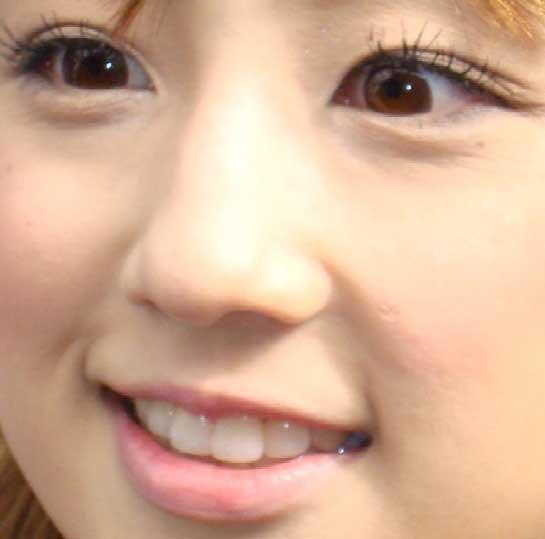 小倉優子 前歯