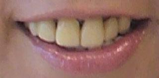 大城さつき 前歯の写真