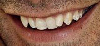 リオ・ファーディナンド 前歯の写真