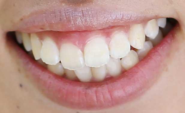 笠りつ子 前歯の写真