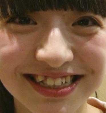 佐藤七海 前歯の写真