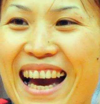 竹下佳江 下の歯