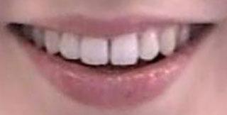 和久田麻由子 前歯の写真