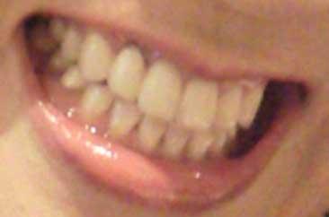 山田邦子 前歯の写真
