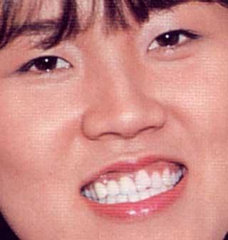 山田邦子 21歳当時