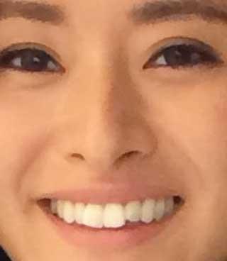クリス‐ウェブ 佳子 前歯の写真