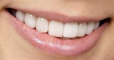 テヨン 前歯の写真