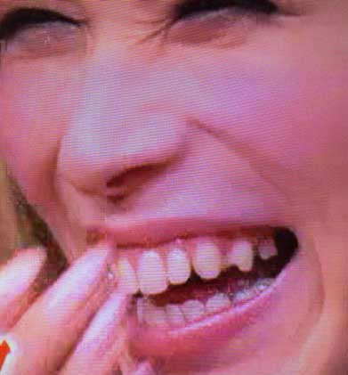 ニューハーフ ベル 歯