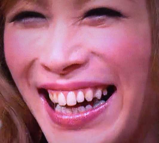 ベル 歯抜け写真