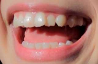 林愛夏 前歯の写真