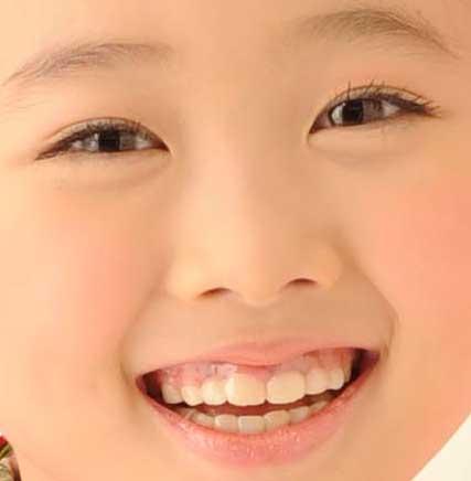 本田望結 歯