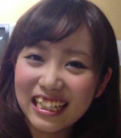 本田桃子 八重歯