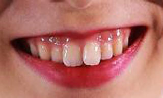 本郷理華 前歯の写真