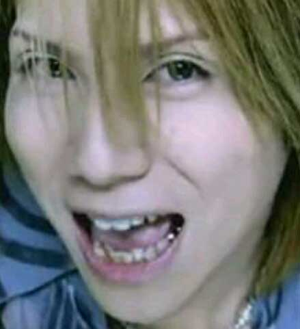 yasu 銀歯
