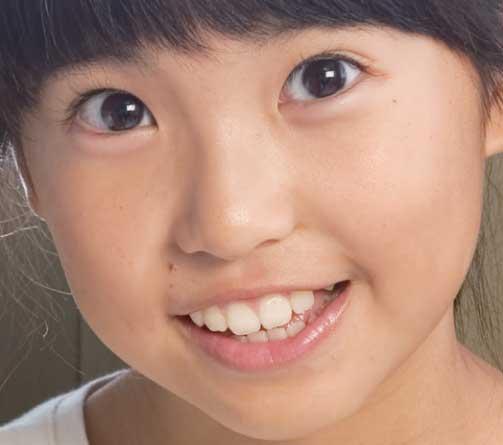 熊田聖亜 2014 歯