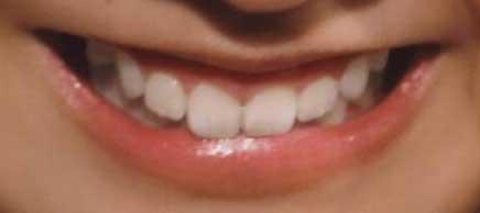 熊井友理奈 前歯の写真