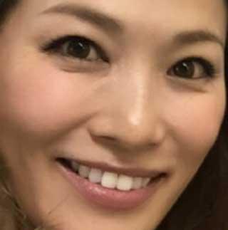 倉本康子 歯