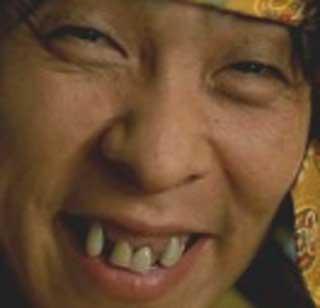 森下能幸 前歯の写真