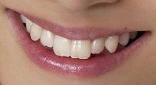 永池南津子 前歯の写真