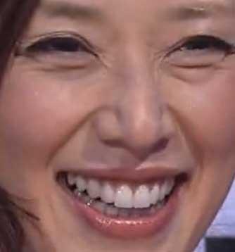 大塚寧々 前歯