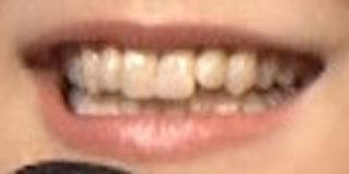 大原櫻子 前歯の写真