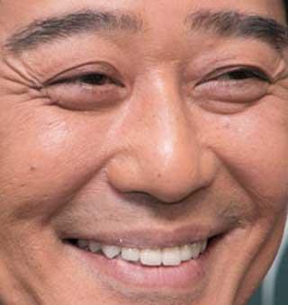 坂上忍 前歯の写真